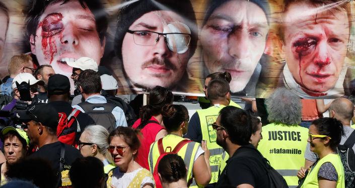 Portraits de protestataires blessés