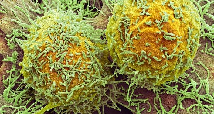 Cellules cancéreuses