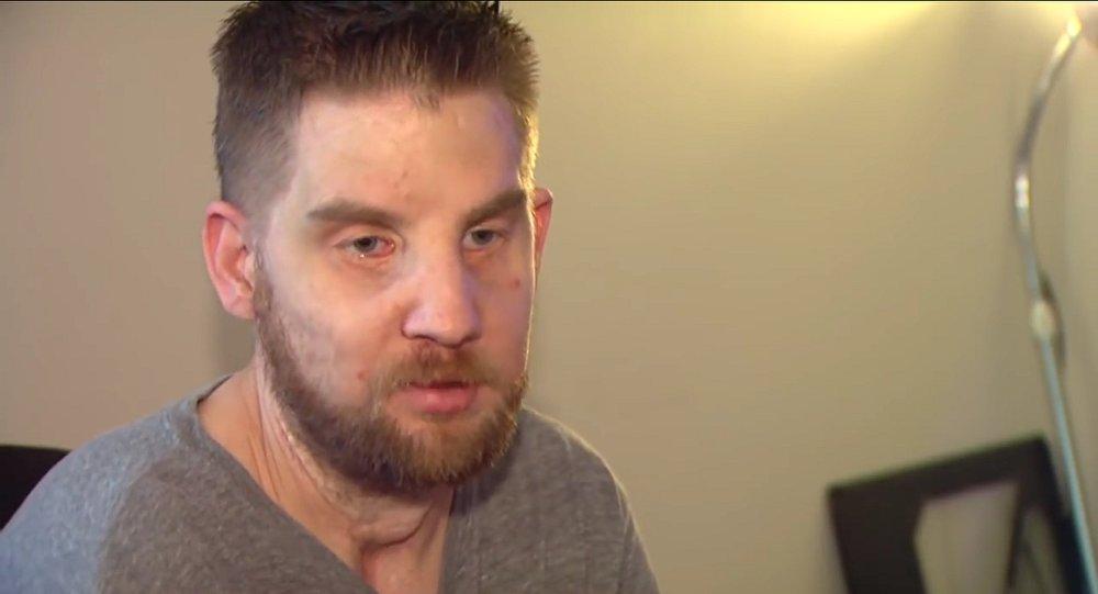 La nouvelle vie d'un Américain après sa greffe de visage