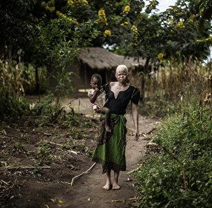Albinos africains