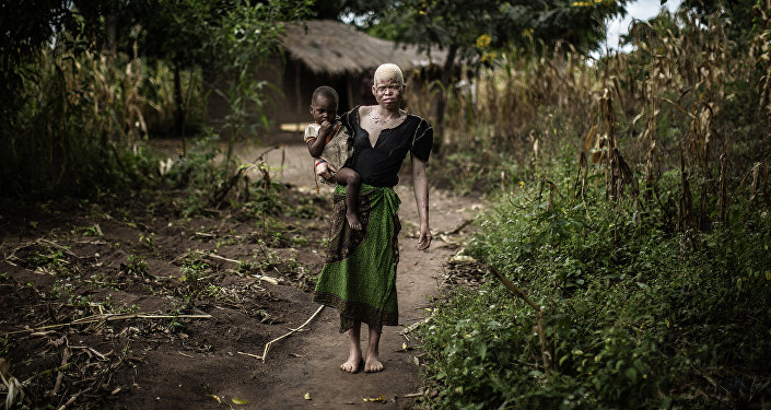 Les albinos africains