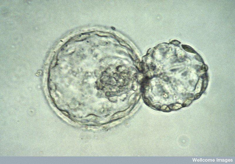 Un embryon humain au stade de blastocyste