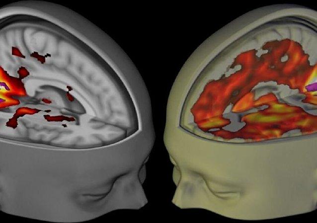 L'image montre le cerveau des sujets se trouvant éveillé, les yeux fermés, sous l'influence d'un placebo et du LSD lorsqu'ils sont examiné en utilisant l'IRM
