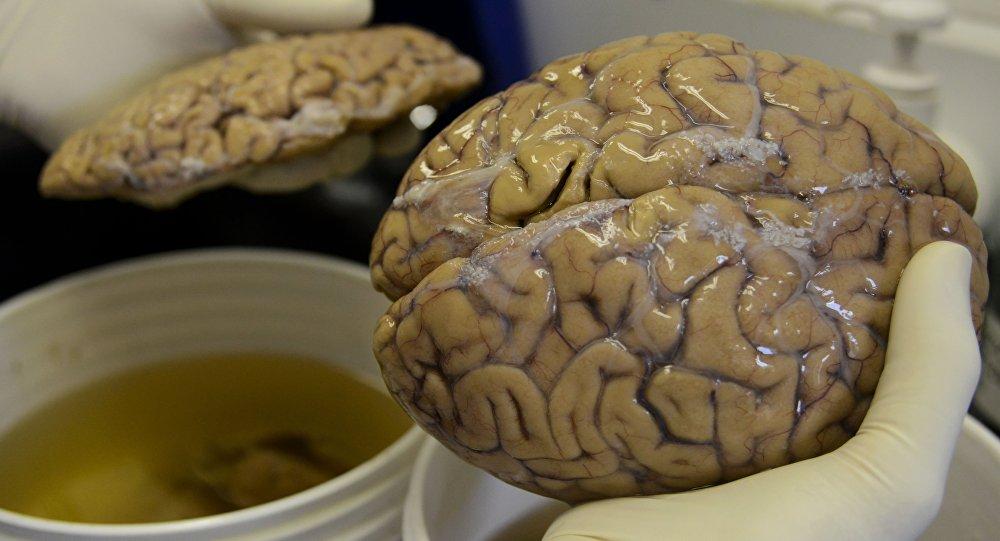 Un test permettrait de dépister l'alzheimer 20 ans plus tôt