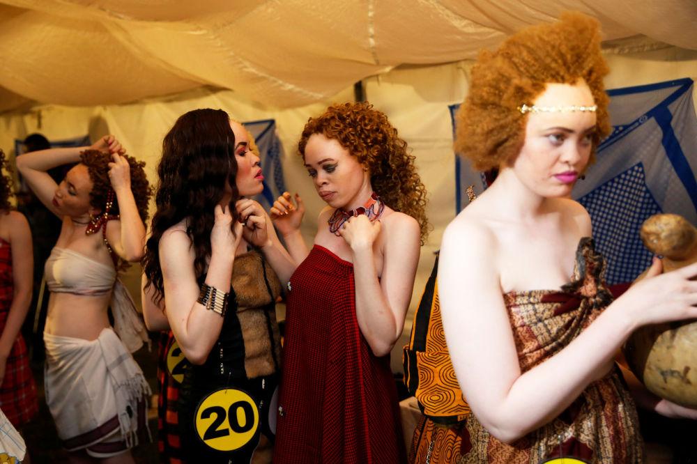 Un concours de beauté  d'albinos au Kenya
