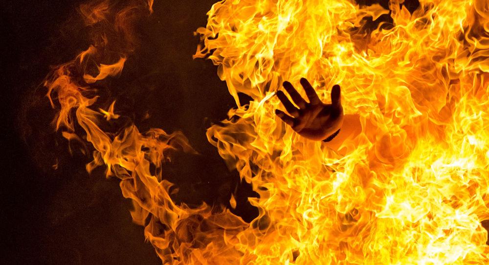 Les cheveux de ce rockeur prennent feu en plein concert, il ne s'interrompt même pas (vidéo) — ON FIRE