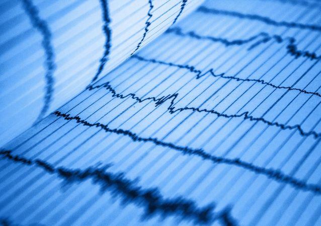 Une cardiogramme (image d'illustration)